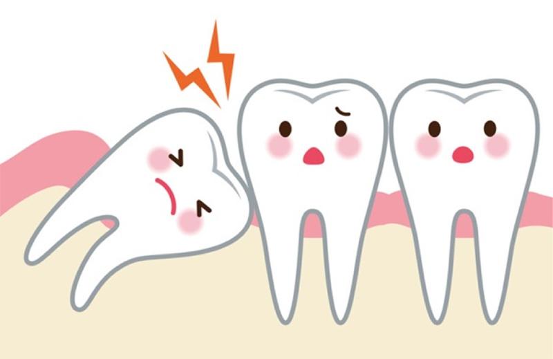 Răng khôn trong quá trình mọc sẽ có khả năng gây ảnh hưởng tới các răng bên cạnh