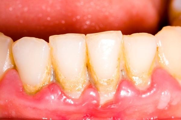 Răng bị ố vàng do các mảng bám lâu ngày
