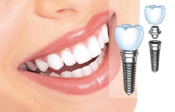 Implant Surgic XT Plus là công nghệ trồng răng đã mất, thiếu răng,…