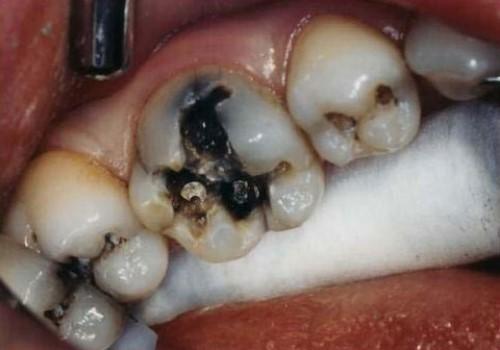 Nguyên nhân gây bệnh sâu răng