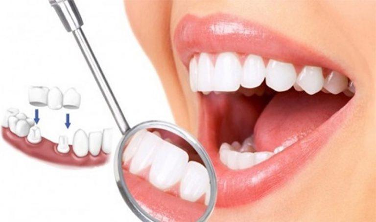 Tiến hành lắp cầu răng