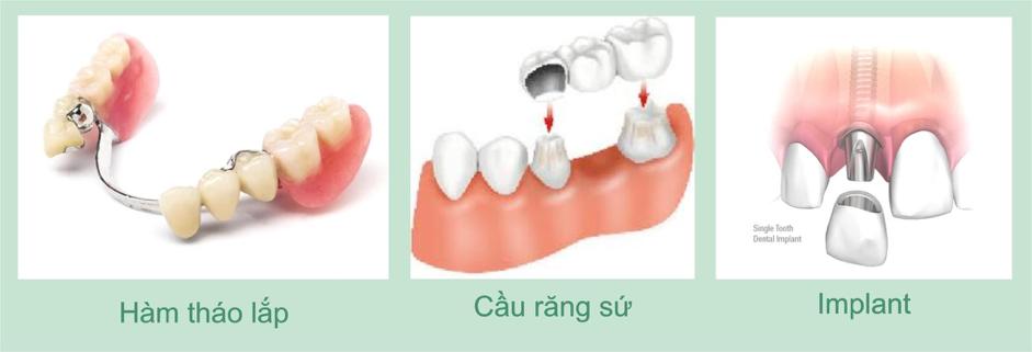 Các phương pháp phục hình răng phổ biến hiện nay