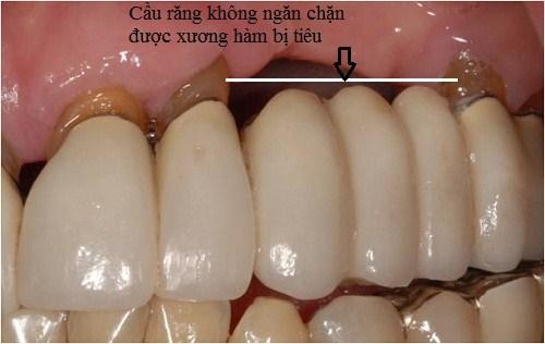 Các phương pháp trồng răng sứ khác không ngăn chặn được xương hàm bị tiêu