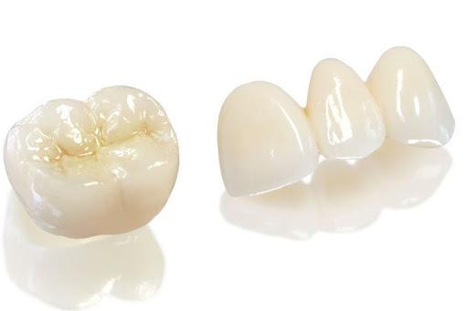Cách thực hiện phục hình răng sứ bằng Zirconia