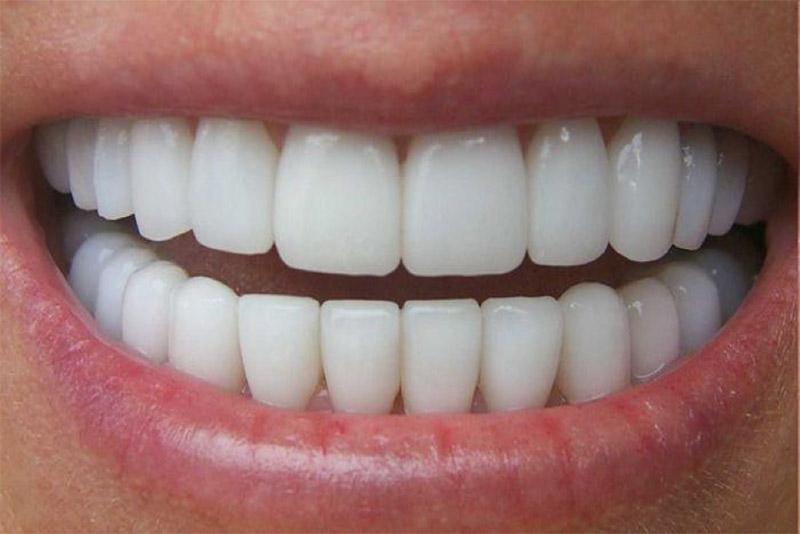 Đánh bóng răng có gây đau đớn?
