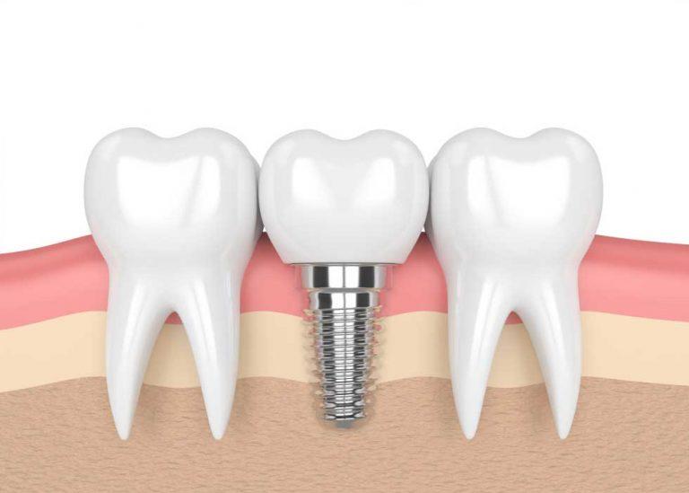 Có cần thiết phải trồng lại răng số 7