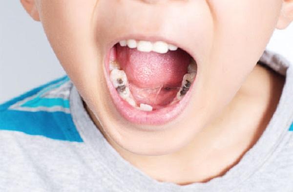 Những nguyên nhân gây nên các bệnh về răng của trẻ nhỏ