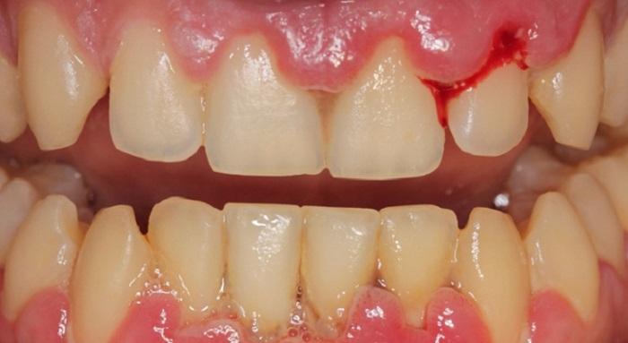 Tham lấy cao răng giá rẻ sẽ khiến bạn phải đối mặt với rủi ro chảy máu chân răng