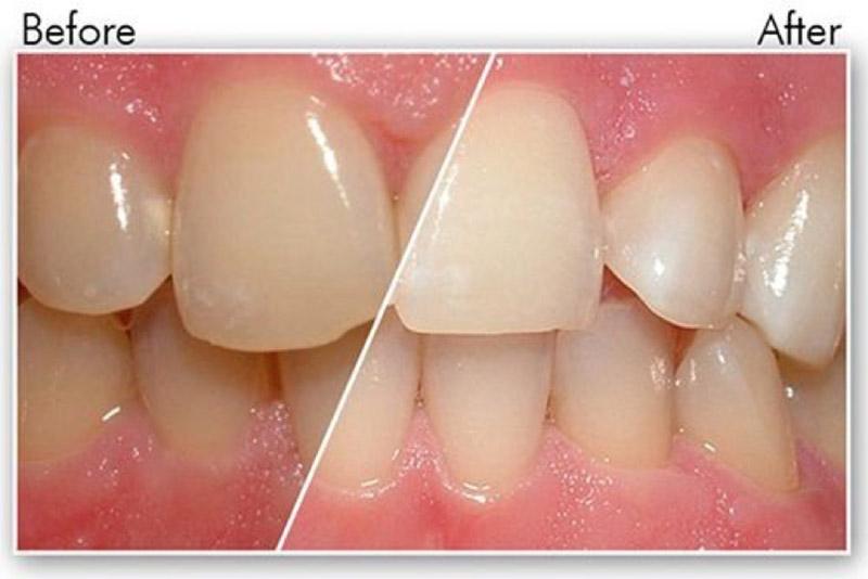 Kết quả trước và sau khi đánh bóng răng