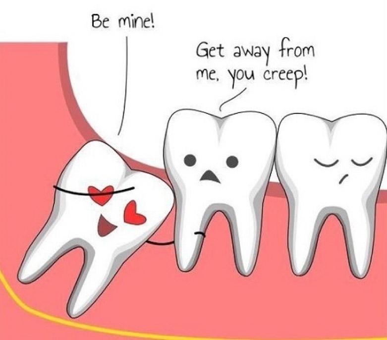 Nên làm gì khi bị đau răng khôn?