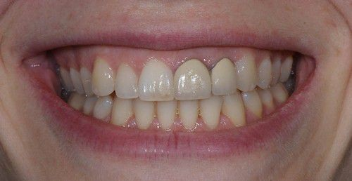 hiện tượng đen viền nướu khi trồng răng sứ