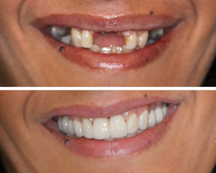 Quy trình thực hiện làm răng giả