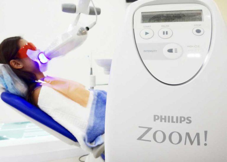 Thuốc tẩy trắng của Laser Zoom II