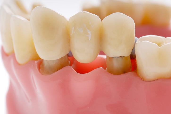Làm cầu răng có gây đau đớn?