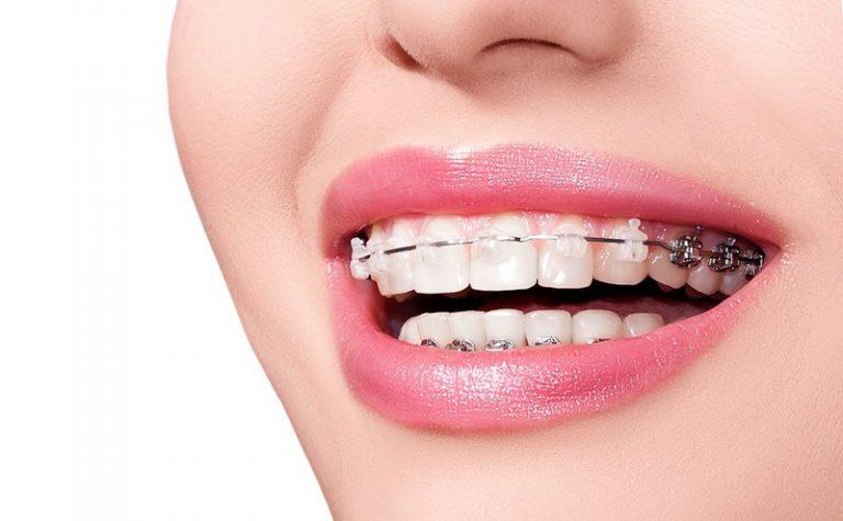 Những lợi ích từ việc niềng răng thưa?