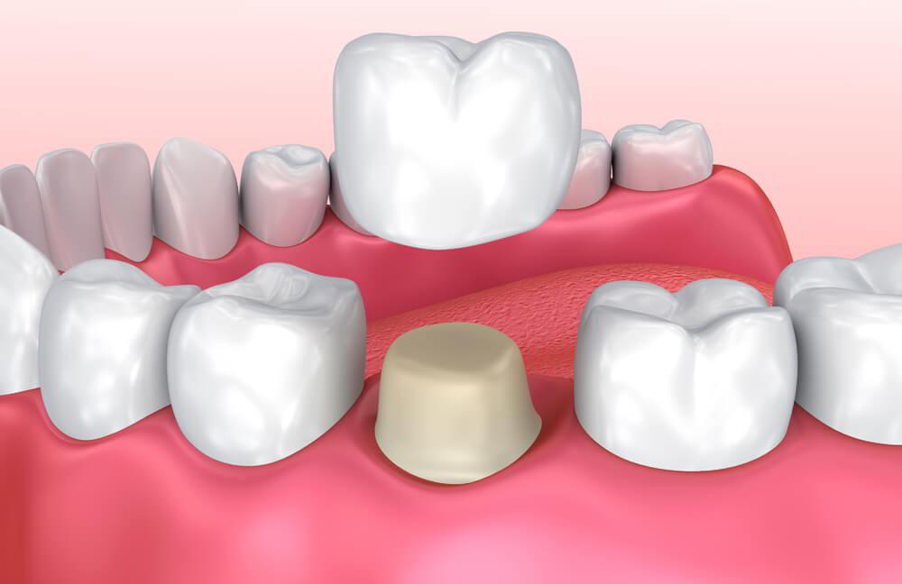 Bọc răng sứ gây ảnh hưởng đến quá trình niềng răng