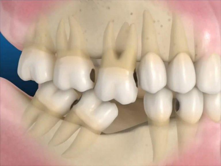 Tại sao nên trồng lại răng số 6