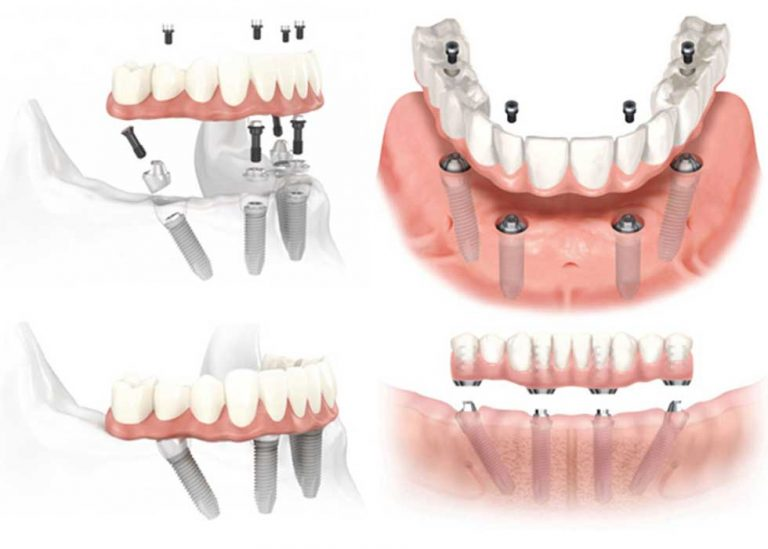 Trồng răng nguyên hàm Implant