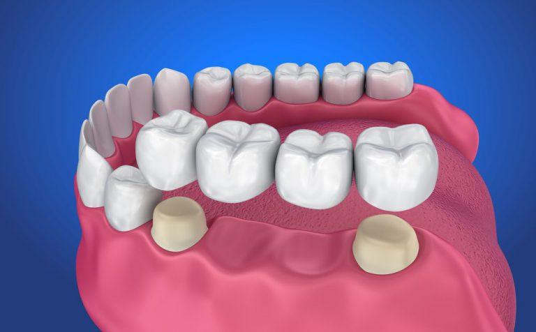 Kiểm tra và thử sườn răng