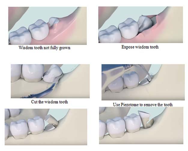 Nhổ răng bằng máy siêu âm Piezotome:
