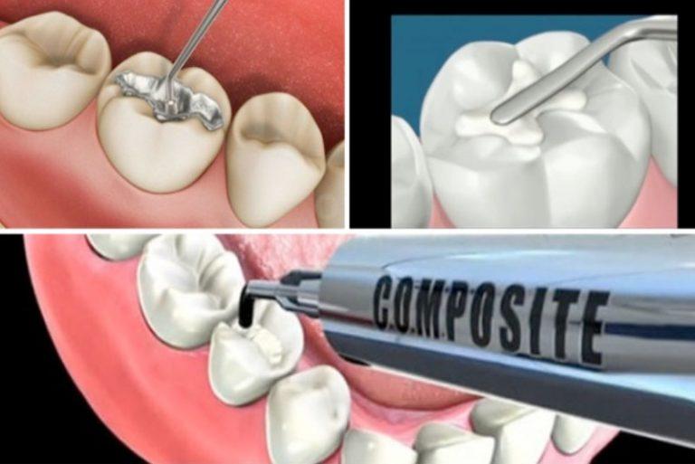 Quy trình trám răng thẩm mỹ