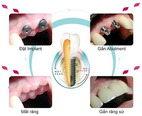 quy trình trồng răng implant có đau không