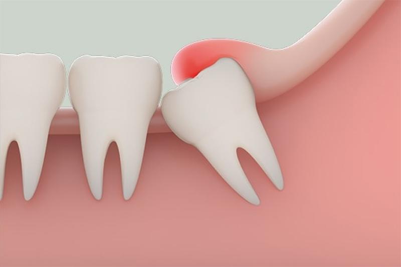 Những trường hợp nào nên nhổ bỏ răng khôn?