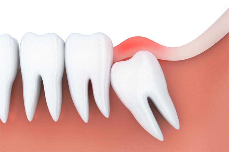 Quá trình răng khôn mọc sẽ gây đau đớn cho bệnh nhân