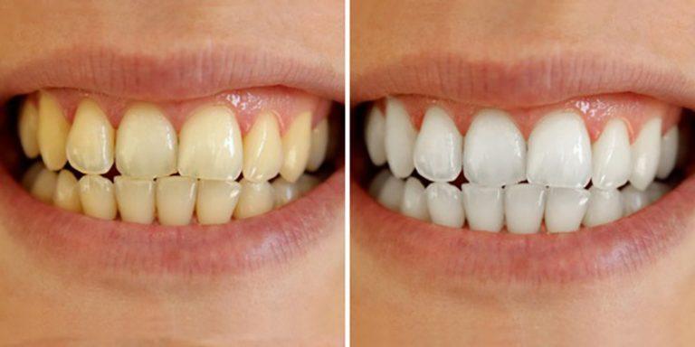 Lấy cao răng có giúp răng trắng hơn không?