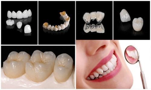 Răng sứ kim loại quý có màu sắc trông giống như răng thật