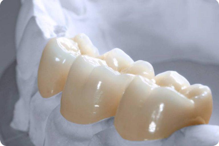 Răng từ vật liệu Zirconia nguyên khối