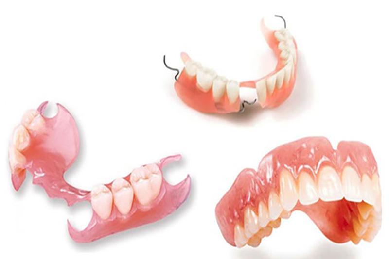 Phương pháp phục hồi cho người mất răng