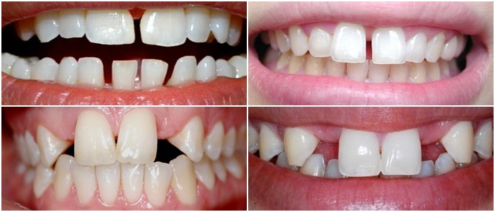 Răng thưa là gì?