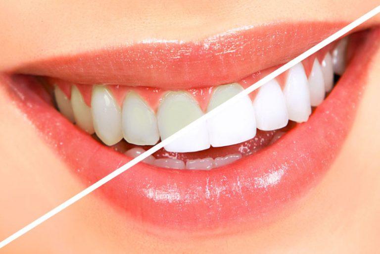 Hàm răng trắng sáng mang lại tự tin khi giao tiếp