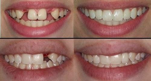 Sau khi nhổ răng có cấy Implant ngay được không