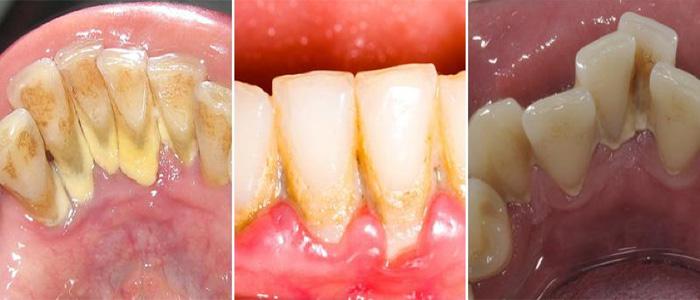 Tại sao chúng ta cần lấy cao răng?