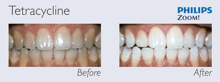 Tẩy trắng răng Laser Zoom II hiệu quả với cả bệnh nhân bị nhiễm Tetracycline