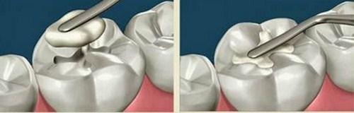 Vậy trám răng có cần chích thuốc tê không?