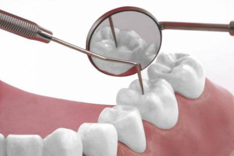 Vật liệu trám răng tại Nha Khoa