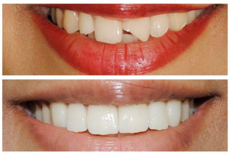 Lợi ích của trám răng đem lại