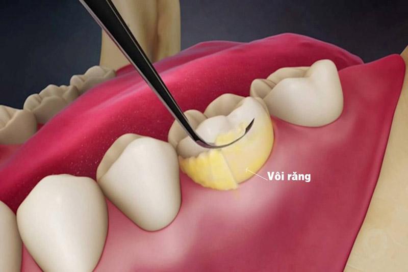 Lấy vôi răng định kỳ là cách ngăn ngừa viêm nha chu