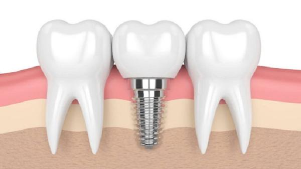 Hệ thống cắm ghép Implant Surgic XT Plus sở hữu nhiều ưu điểm nổi bật