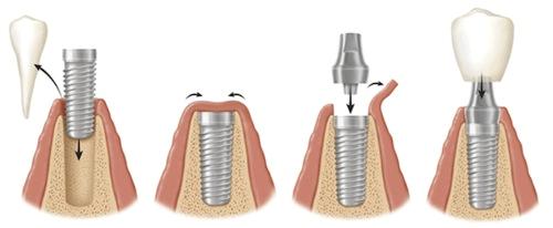 trong rang implant co dau khong