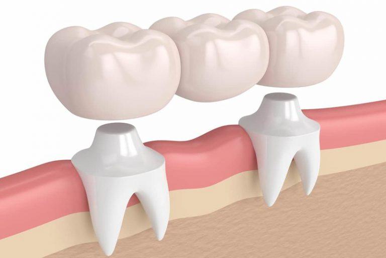 Những ưu điểm khi thực hiện lắp cầu răng