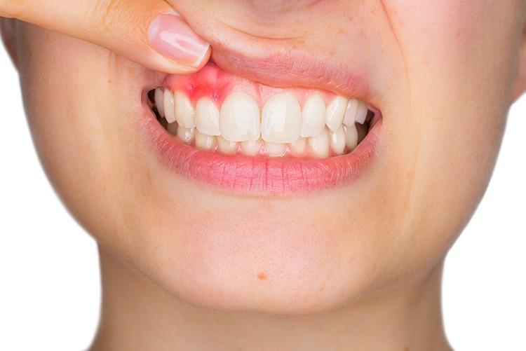 Bọc răng sứ sai cách là nguyên nhân gây viêm lợi
