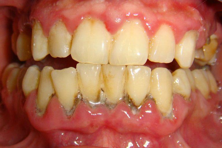 Cao răng và những ảnh hưởng không tốt tới sức khỏe răng miệng