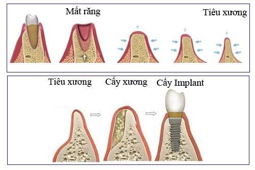 Với công nghệ hiện đại thì bị tiêu xương vẫn có thể trồng răng Implant được