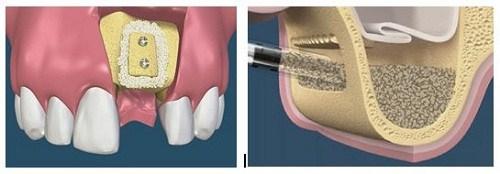 Phương pháp cấy ghép xương