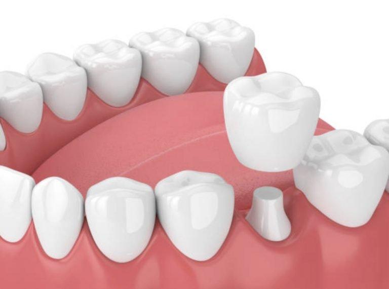 3 Yếu tố then chốt giúp bọc răng sứ không đau