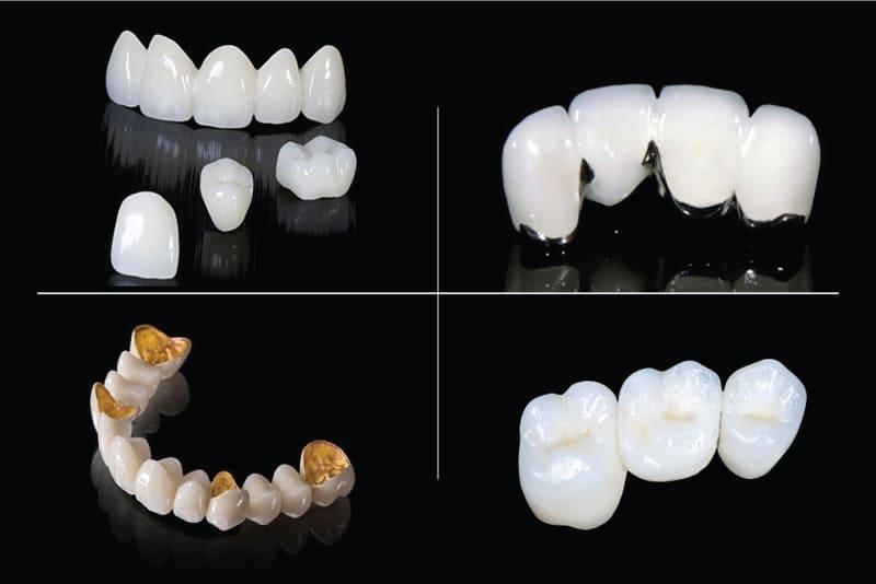 4 loại bọc mão răng được ưa chuộng nhất tại nha khoa bạn nên tham khảo